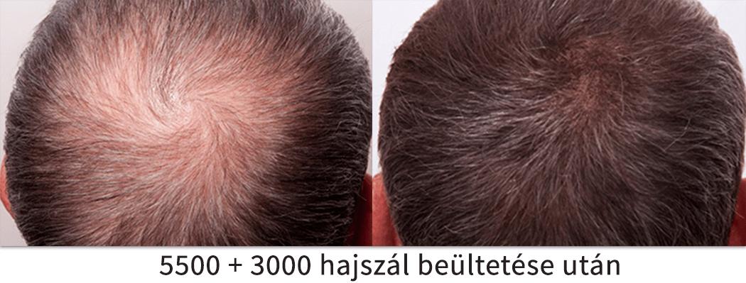 5500 + 3000 hajszál beültetése utáni előtte utána eredmény