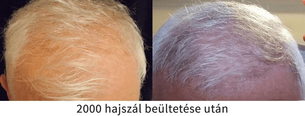 2000 hajszál beültetése utáni előtte utána eredmény