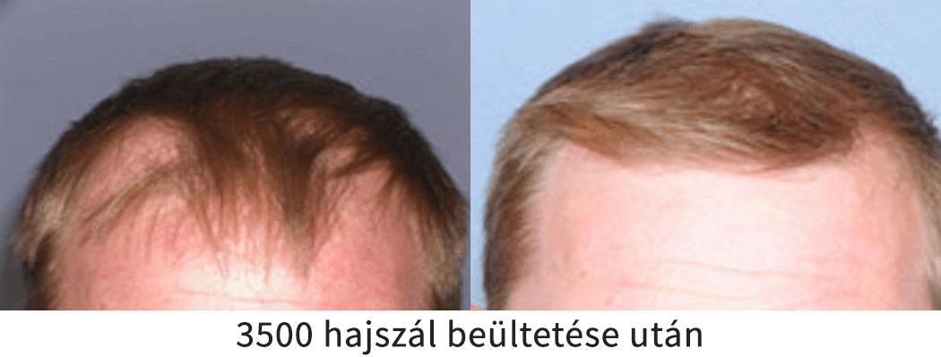 3500 hajszál beültetése utáni előtte utána eredmény