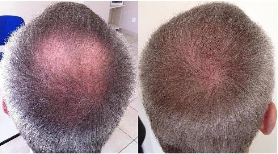 hajátültetés előtte-utána