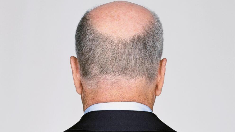 beültetett haj fej