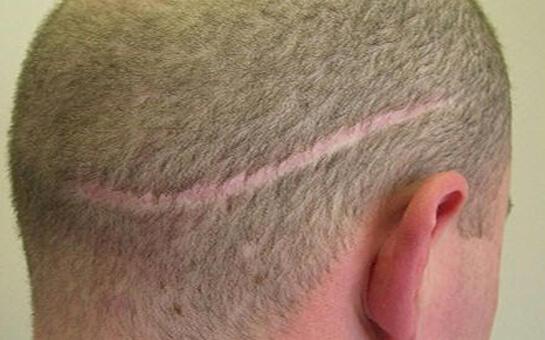 hajplasztika