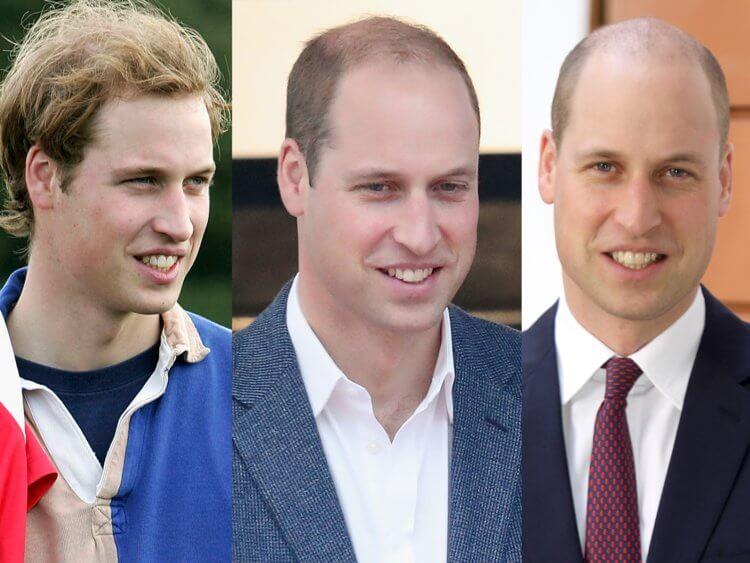 hajbeültetés után Vilmos herceg