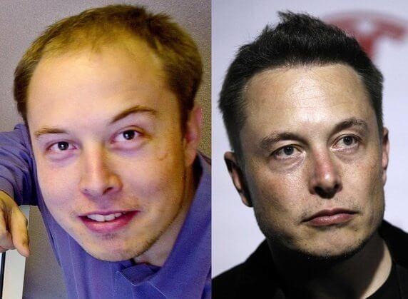 hajbeültetés után Elon Musk