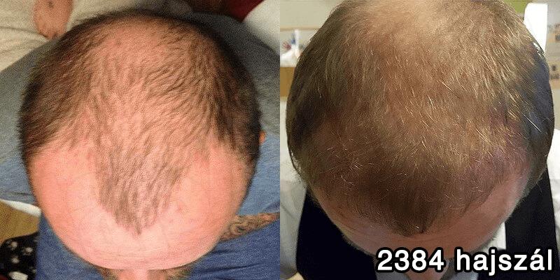 2384 hajszál hajbeültetés előtte utána - hajbeültetés referenciák