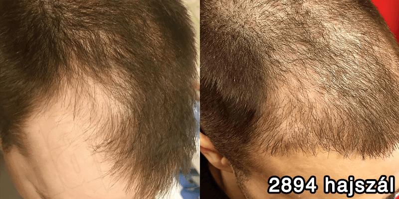2894 hajszál hajbeültetés előtte utána - hajbeültetés referenciák