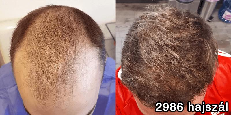 2986 hajszál hajbeültetés előtte utána - hajbeültetés referenciák