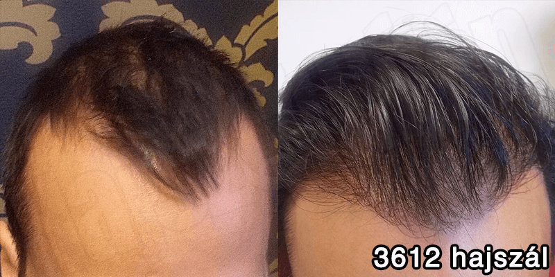 3612 hajszál hajbeültetés előtte utána - hajbeültetés referenciák