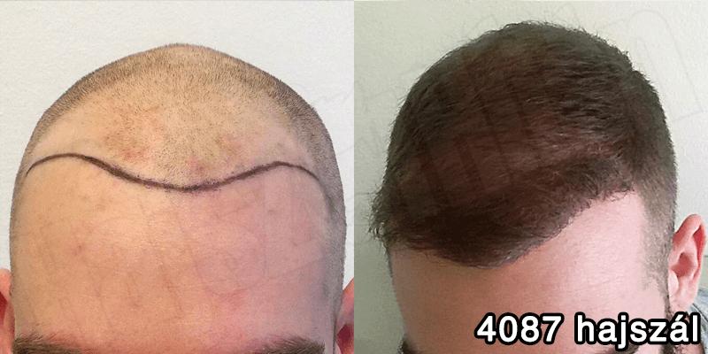 Hajbeültetés előtte utána- 4087 beültetett hajszál - hajbeültetés referenciák