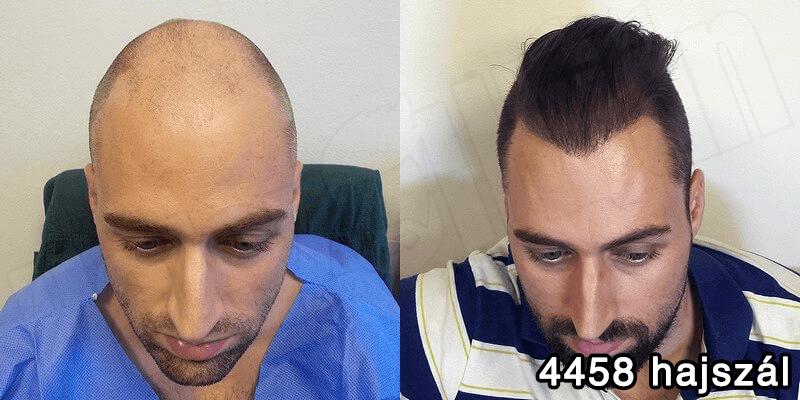 Hajbeültetés előtte utána- 4458 hajszál - hajbeültetés referenciák