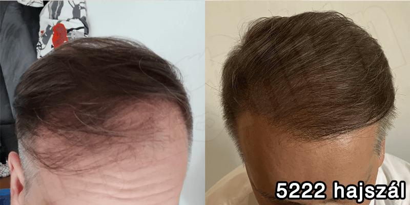 Páciensünk 4087 hajszál hajbeültetés előtte utána - hajbeültetés referenciák