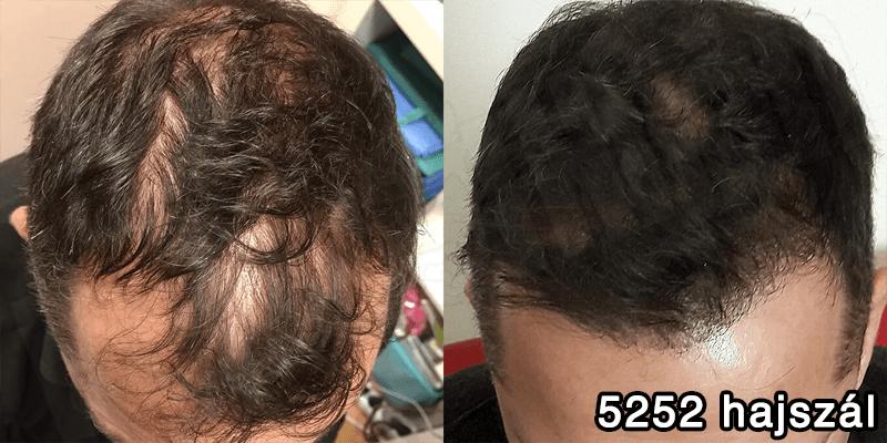 5252 hajszál hajbeültetés előtte utána - hajbeültetés referenciák