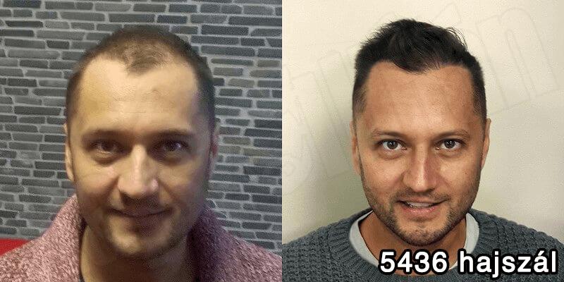 5436 hajszál hajbeültetés előtte utána - hajbeültetés referenciák