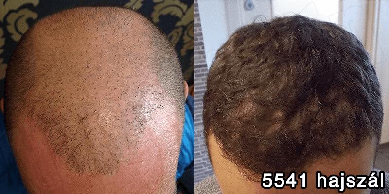 5541 hajszál hajbeültetés előtte utána - hajbeültetés referenciák