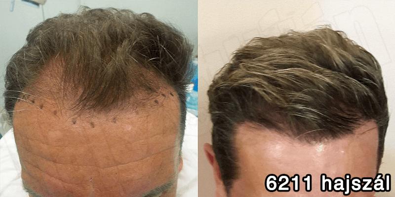6211 hajszál hajbeültetés előtte utána - hajbeültetés referenciák