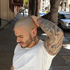 Helyes férfi borostás fejbőrre, ami persze a mikropigmentáció eredménye.