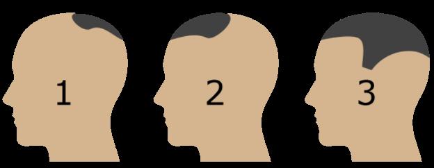 Hajtetoválás zónákkal jelezve, hogy mennyire kiterjedt a korrigáció szükségessége.