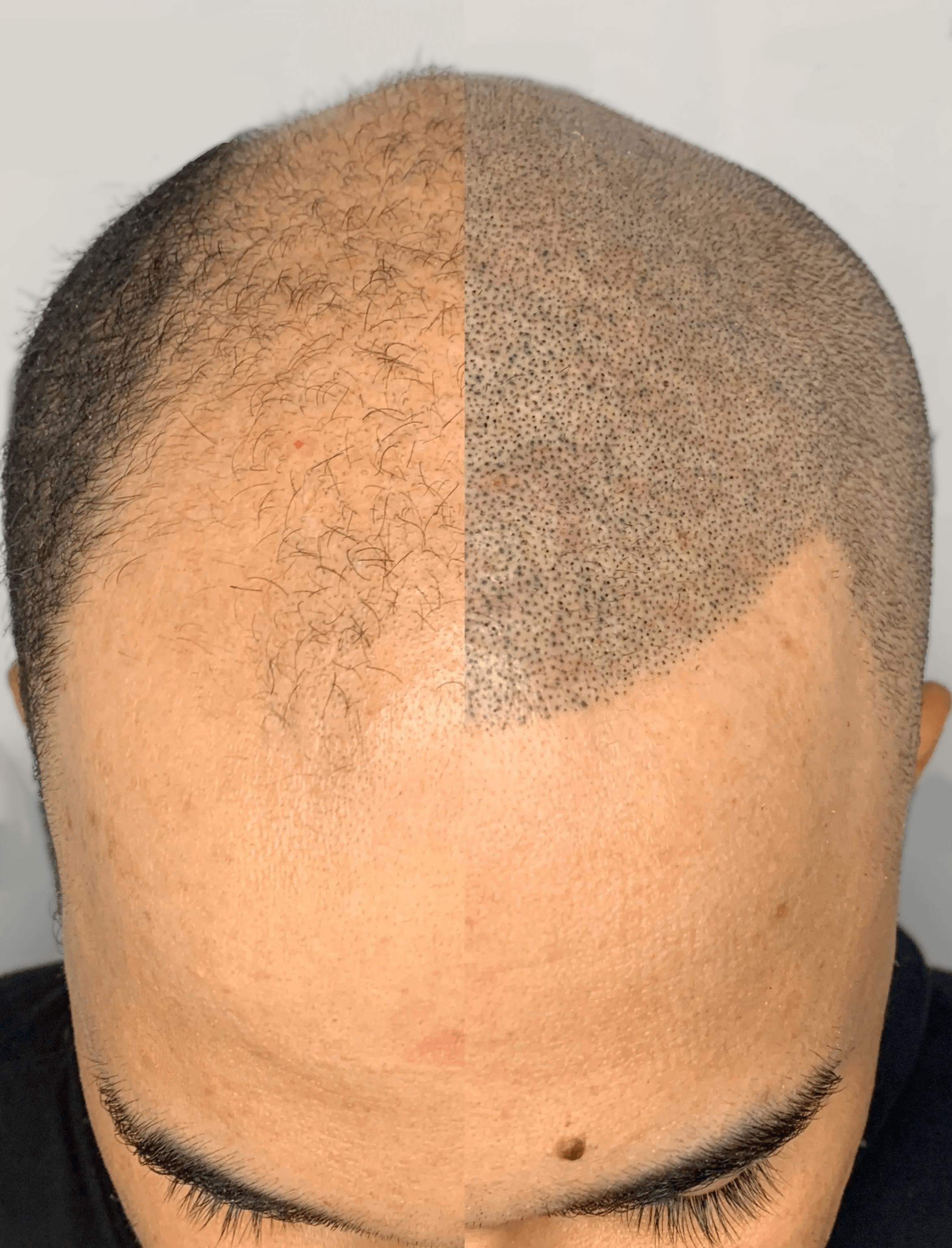 Mikropigmentáció eredménye előtte-utána fele-fele képpel szemléltetve.