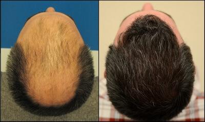Felülről mutatjuk, hogy mennyire eredményes a hajbeültetés a Hajszál Híján Klinikán