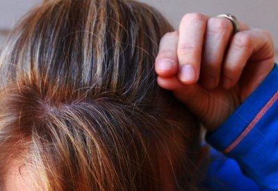 Hajszálakat emel ki a hajából, ahol megszaporodtak a kihulló hajszálak.