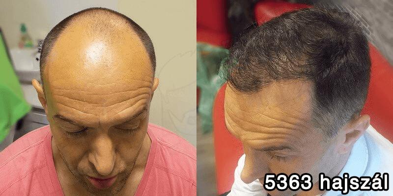 férfi hajbeültetés eredménye előtte-utána képpel
