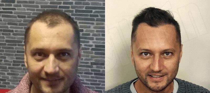 László hajbeültetés eredményét láthatjuk előtt-után képpel ábrázolva, amit a Hajszál Híján Klinikán csináltatott